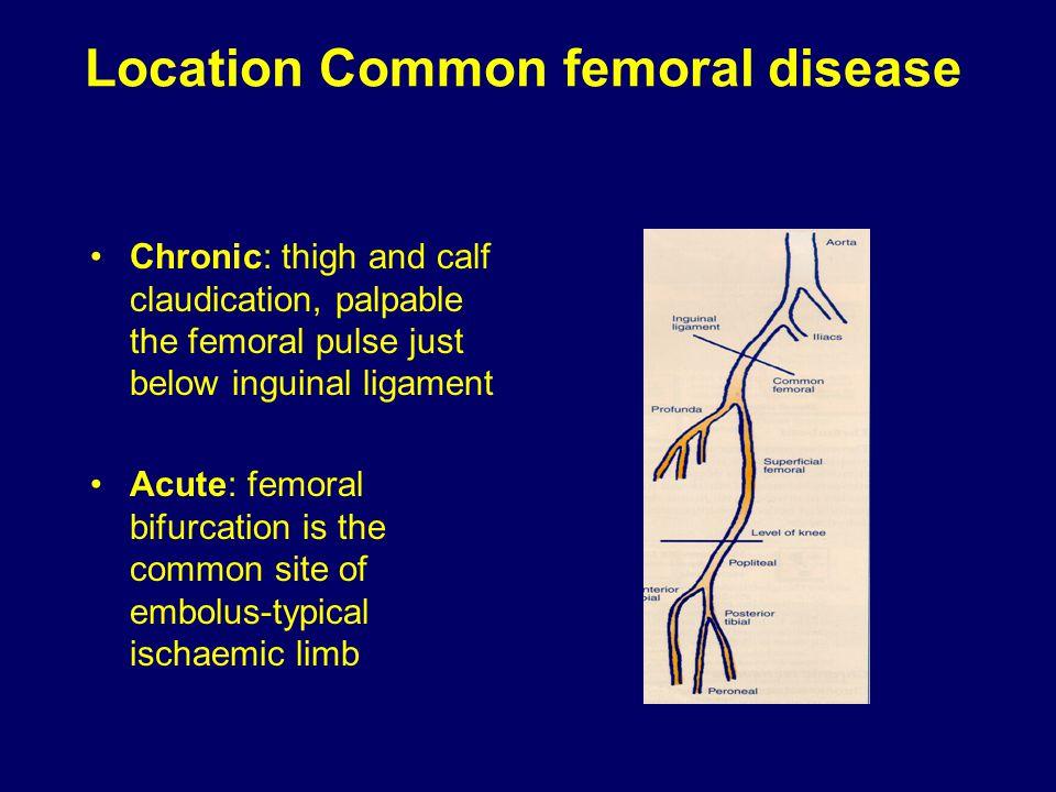 Location Common femoral disease