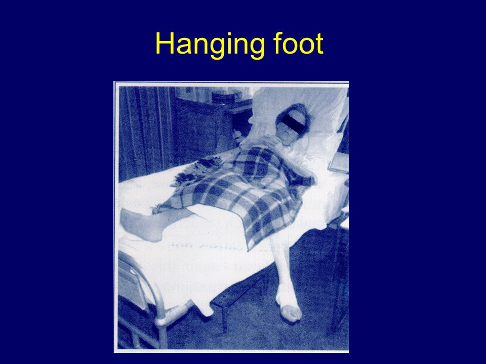 Hanging foot