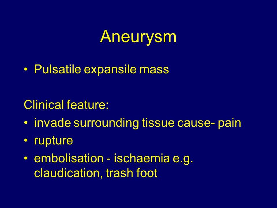 Aneurysm Pulsatile expansile mass Clinical feature: