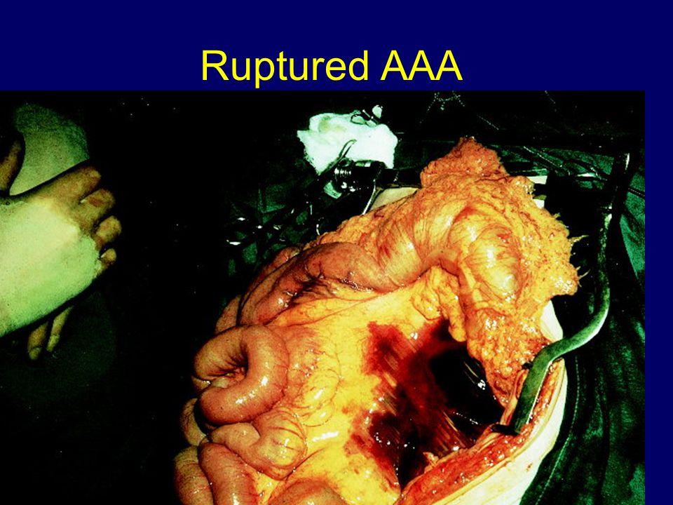 Ruptured AAA