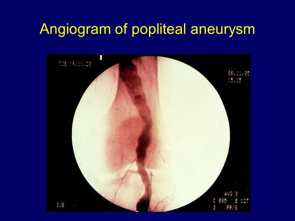 Angiogram of popliteal aneurysm