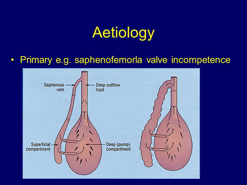 Aetiology Primary e.g. saphenofemorla valve incompetence