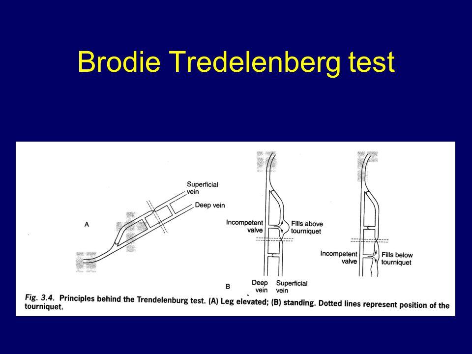 Brodie Tredelenberg test