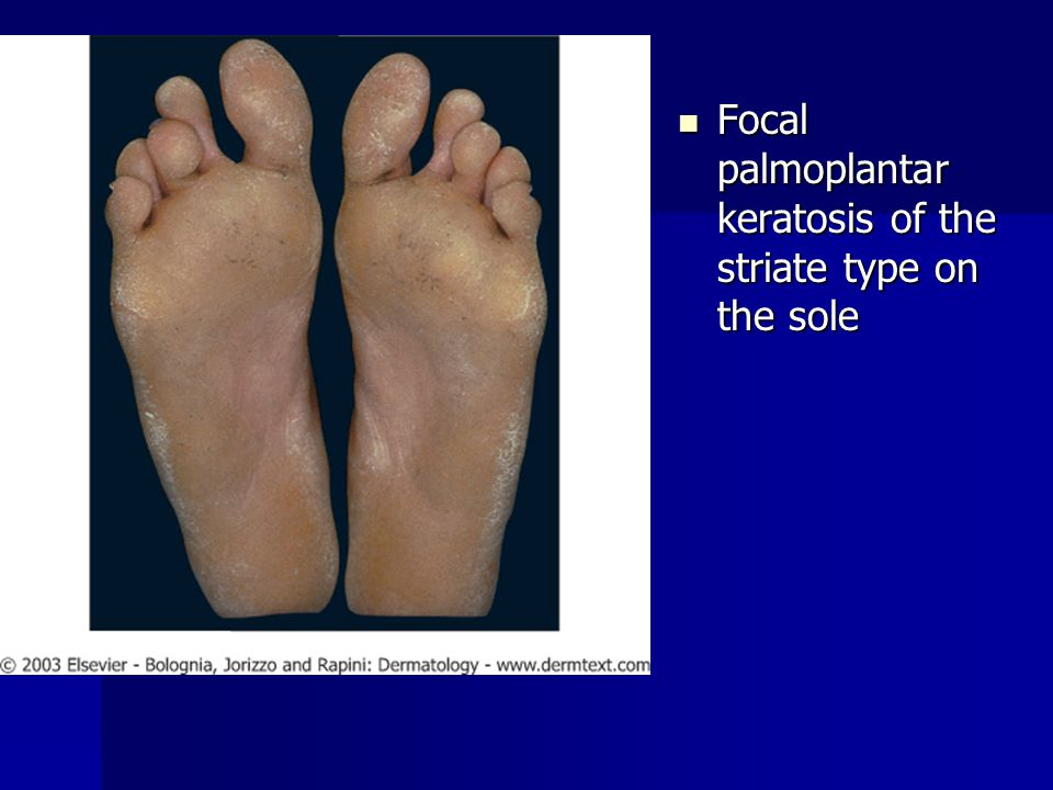 Focal palmoplantar keratosis of the striate type on the sole