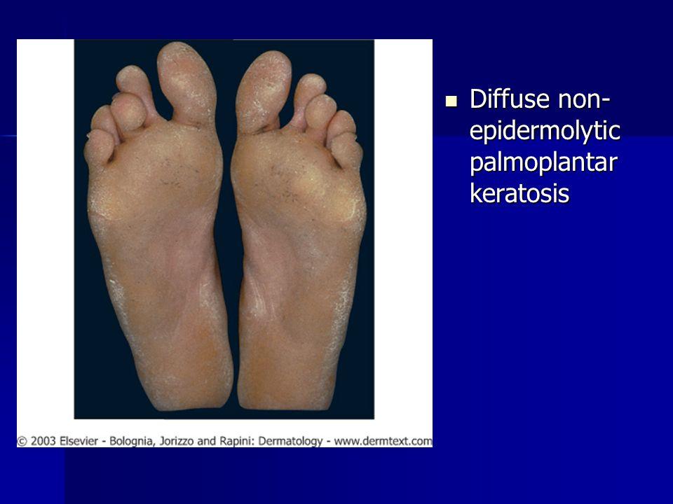 Diffuse non-epidermolytic palmoplantar keratosis