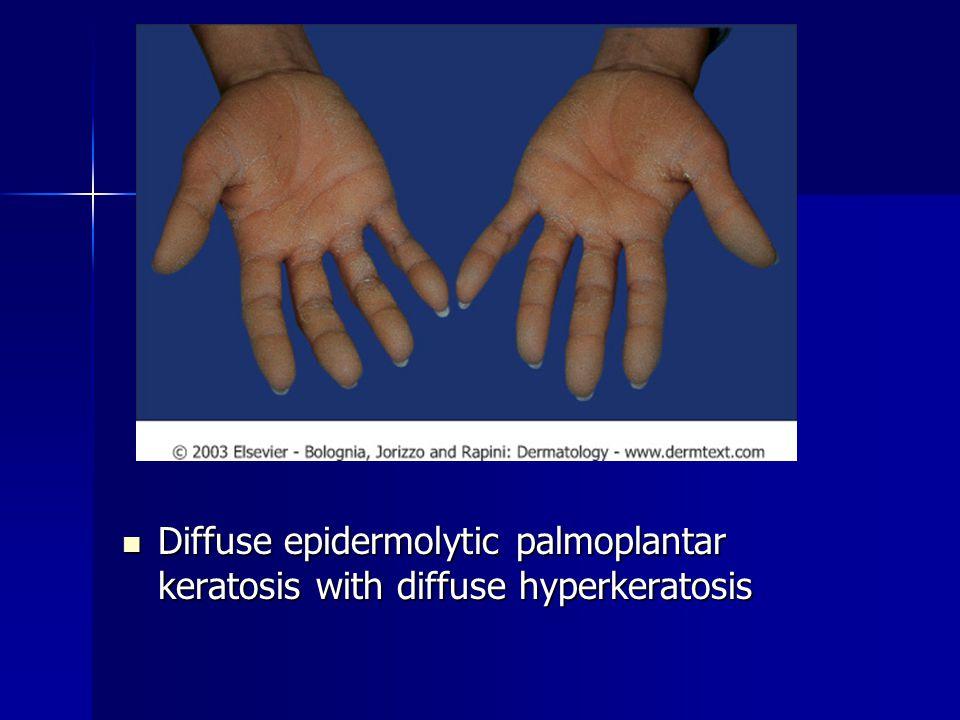 Diffuse epidermolytic palmoplantar keratosis with diffuse hyperkeratosis