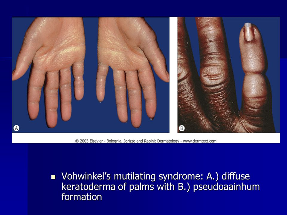 Vohwinkel's mutilating syndrome: A