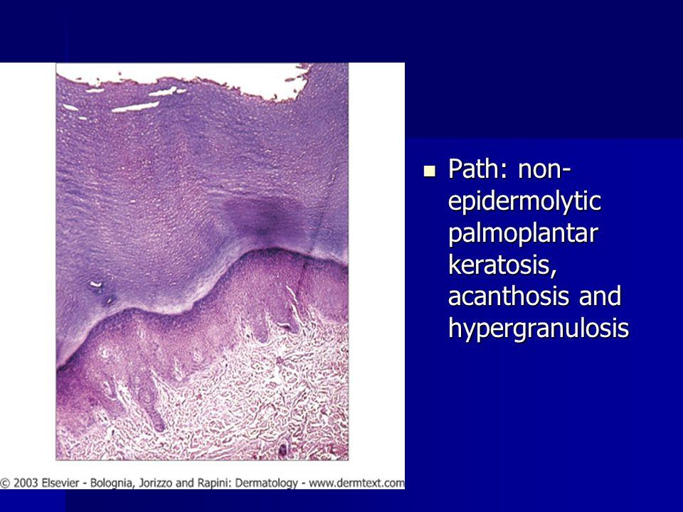 Path: non-epidermolytic palmoplantar keratosis, acanthosis and hypergranulosis