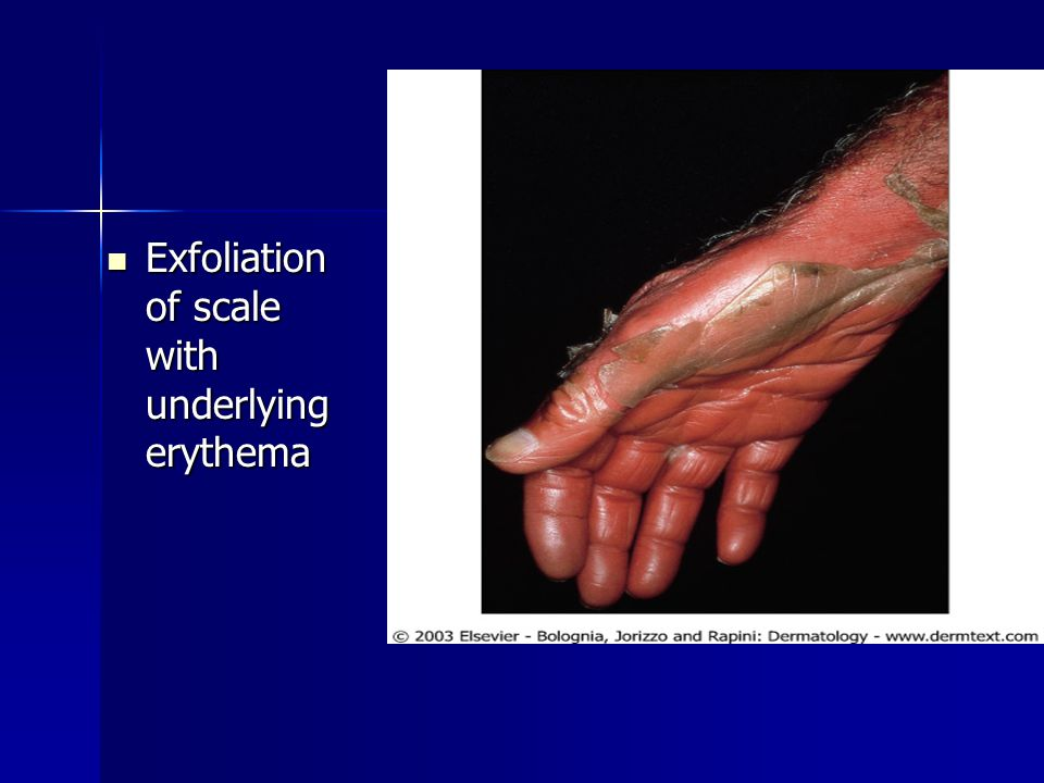 Exfoliation of scale with underlying erythema