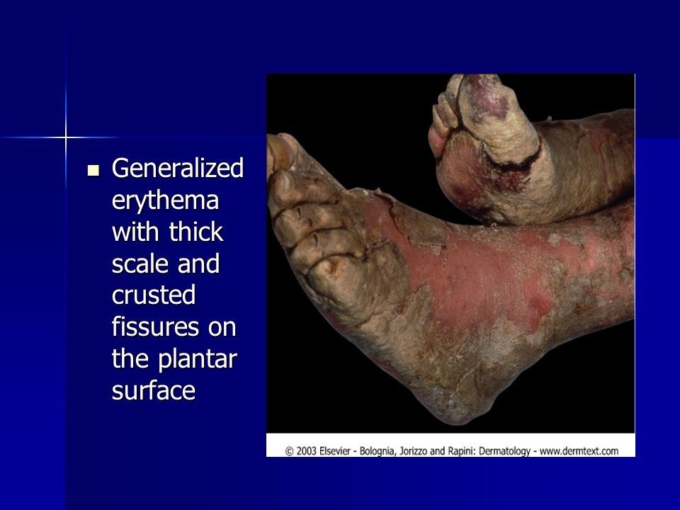 Generalized erythema with thick scale and crusted fissures on the plantar surface