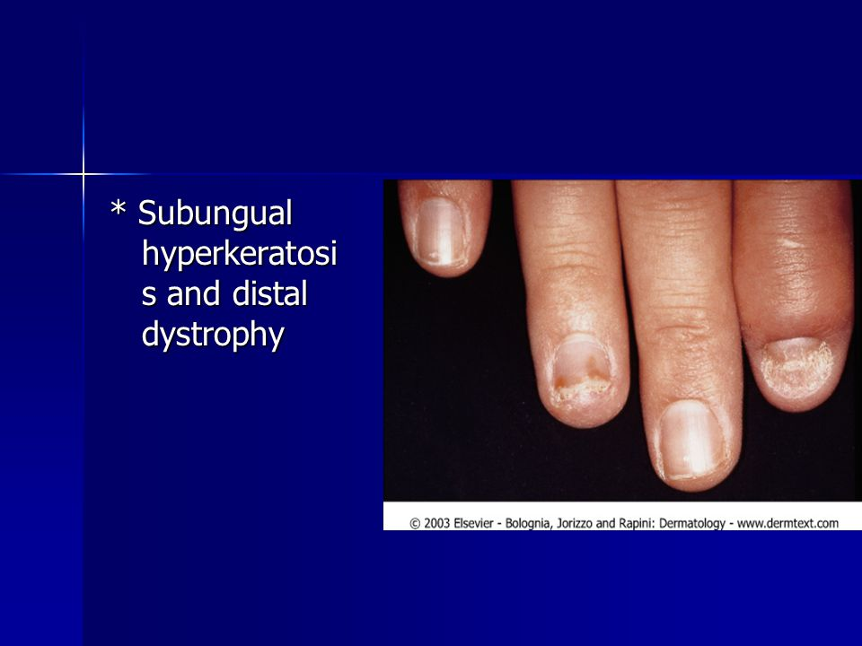 * Subungual hyperkeratosis and distal dystrophy