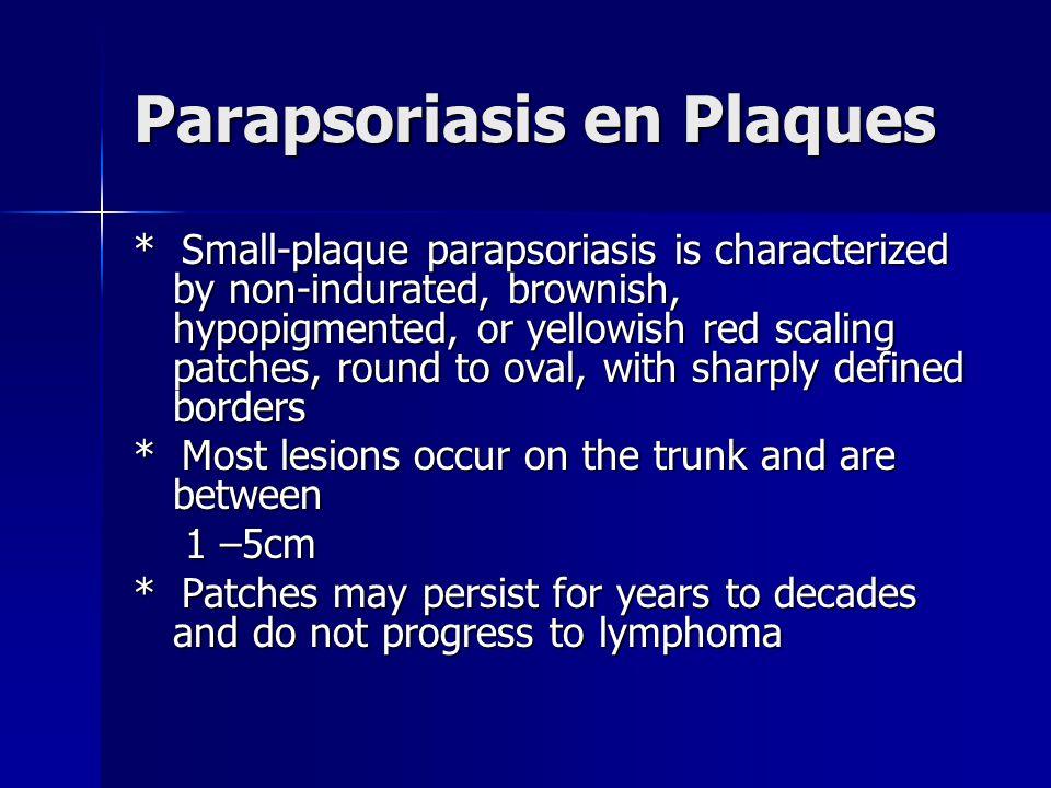 Parapsoriasis en Plaques