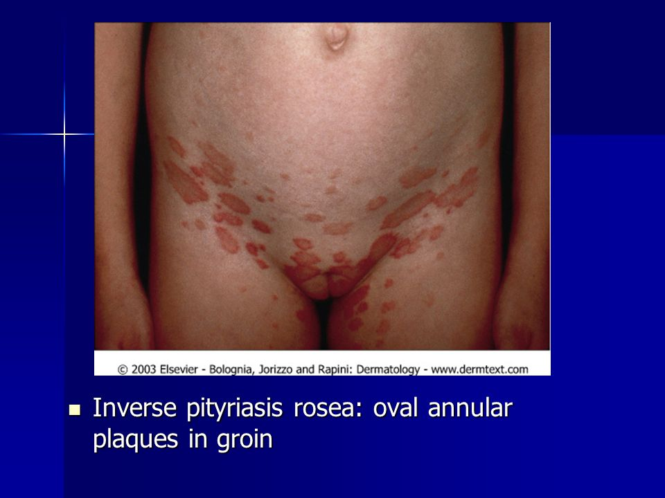Inverse pityriasis rosea: oval annular plaques in groin