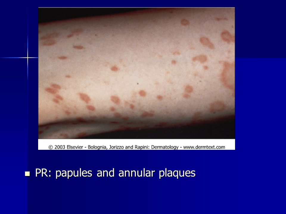 PR: papules and annular plaques