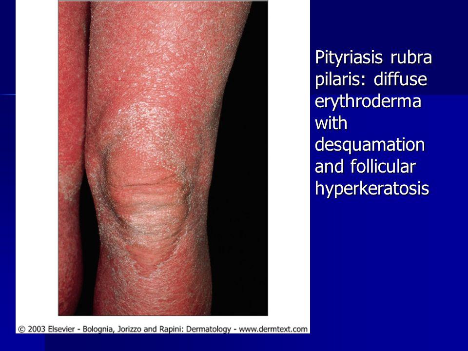 Pityriasis rubra pilaris: diffuse erythroderma with desquamation and follicular hyperkeratosis