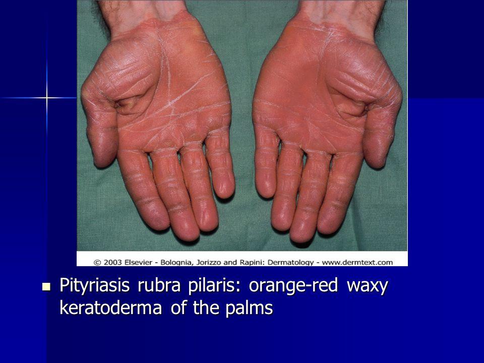 Pityriasis rubra pilaris: orange-red waxy keratoderma of the palms