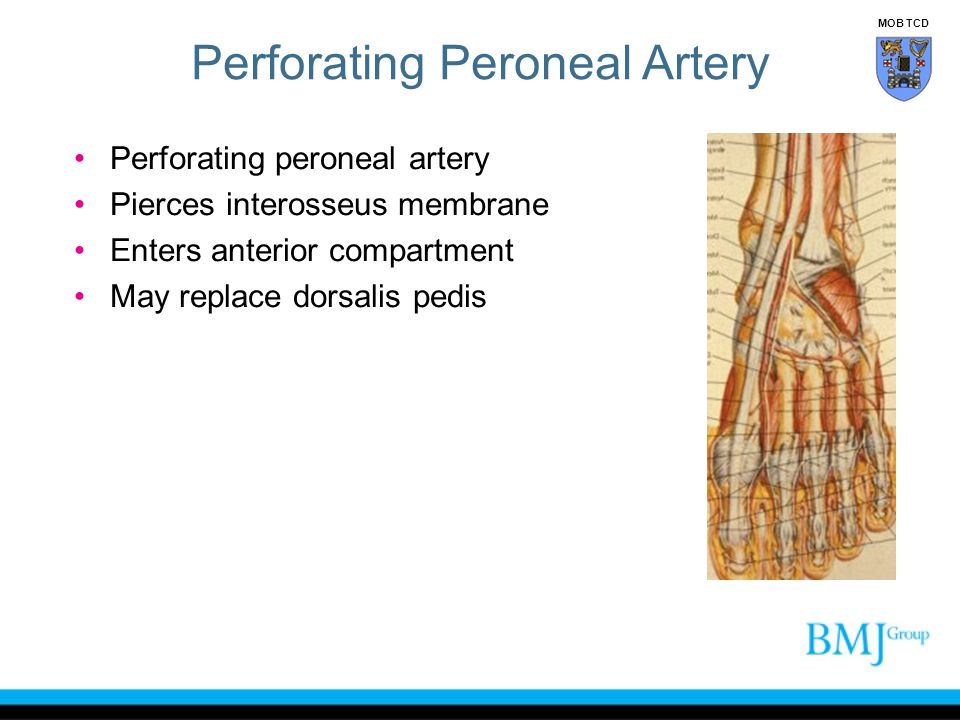 Perforating Peroneal Artery