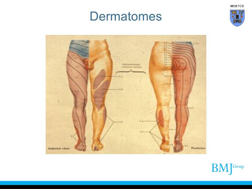 Dermatomes MOB TCD