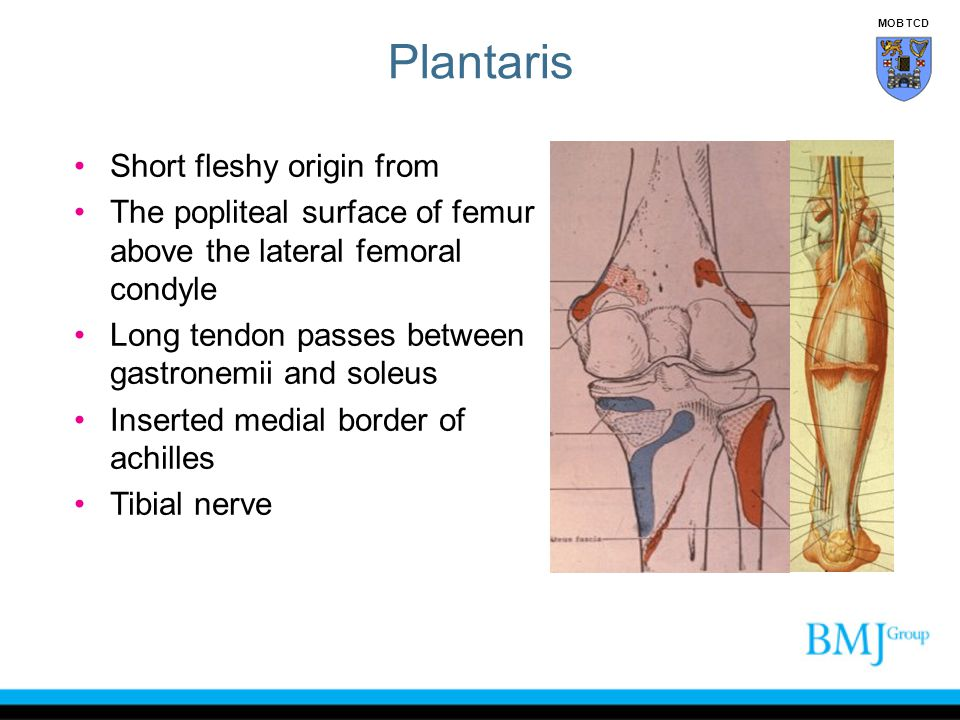Plantaris Short fleshy origin from
