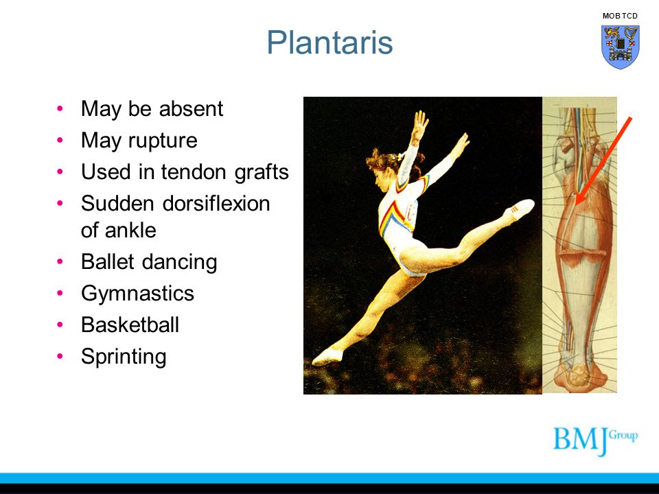 Plantaris May be absent May rupture Used in tendon grafts
