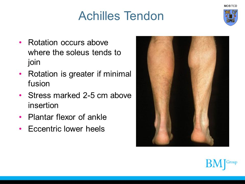 Achilles Tendon Rotation occurs above where the soleus tends to join