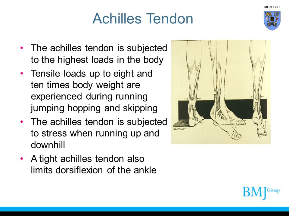 Achilles Tendon MOB TCD. The achilles tendon is subjected to the highest loads in the body.