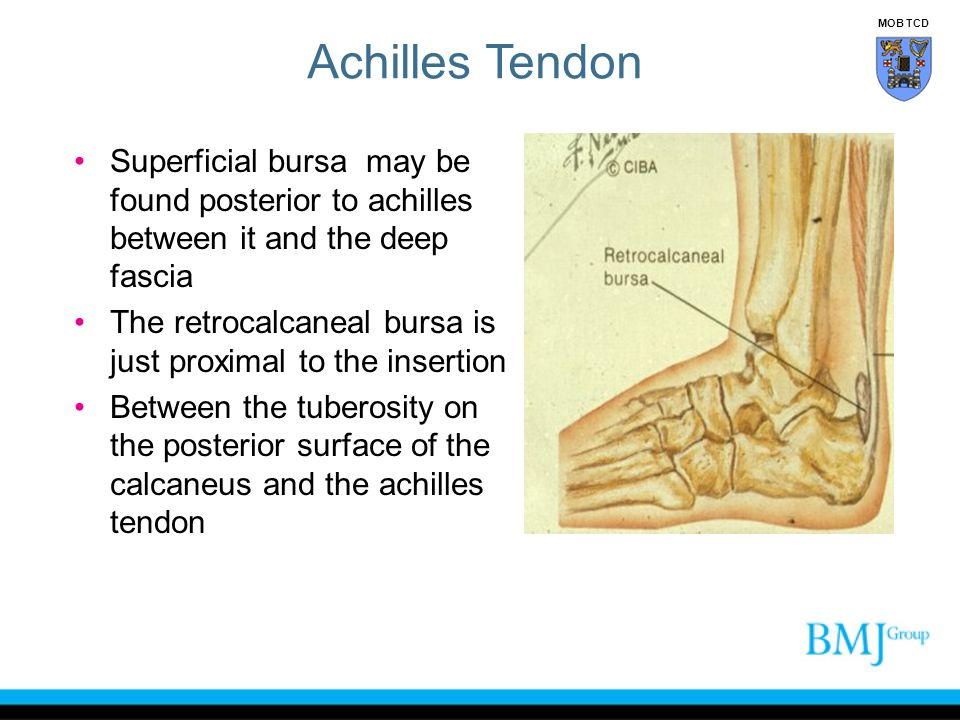 Achilles Tendon MOB TCD. Superficial bursa may be found posterior to achilles between it and the deep fascia.
