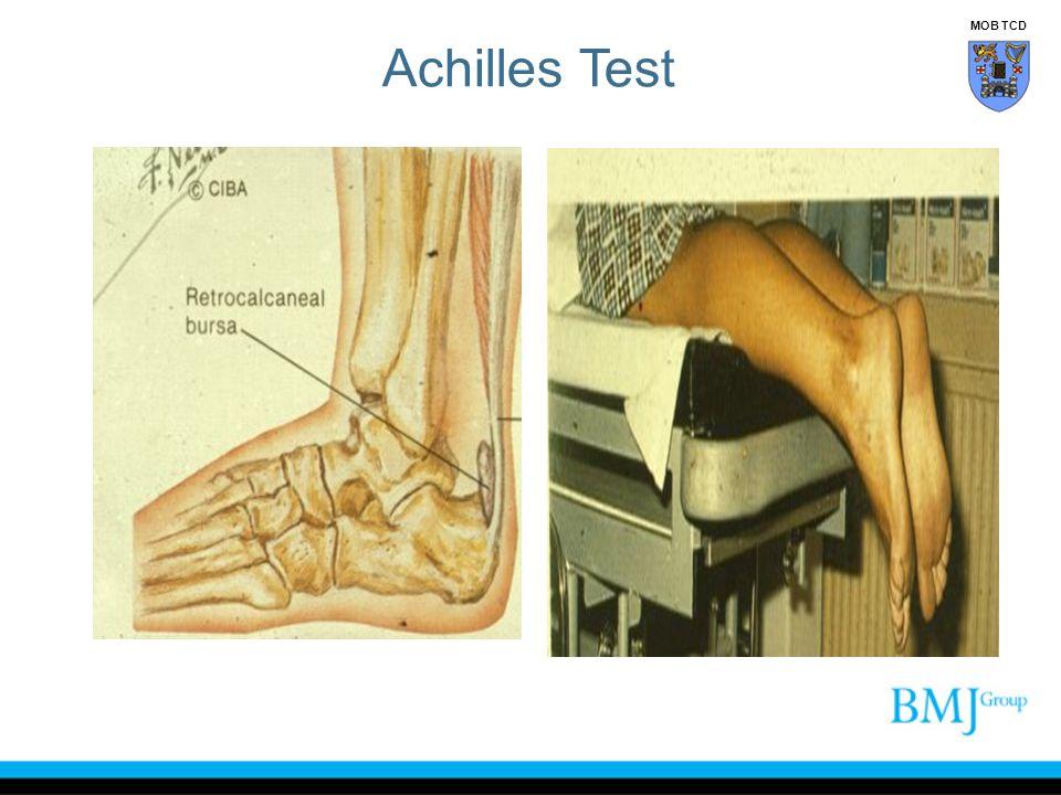 Achilles Test MOB TCD