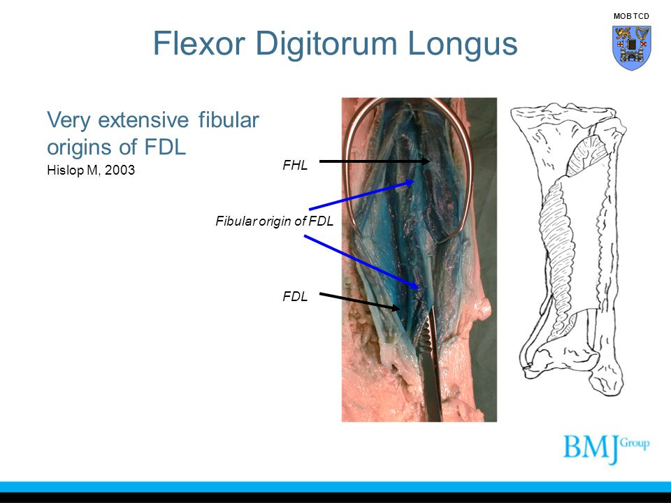 Very extensive fibular origins of FDL