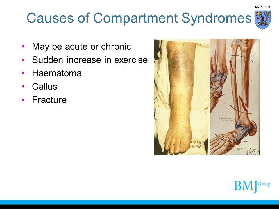Causes of Compartment Syndromes