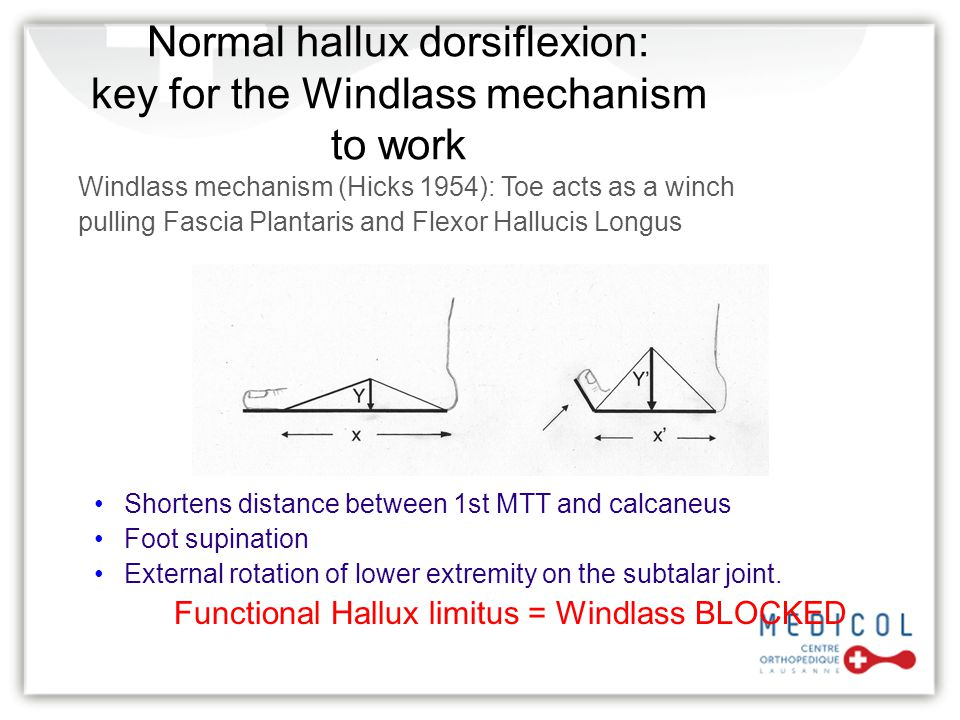 Normal hallux dorsiflexion: key for the Windlass mechanism to work