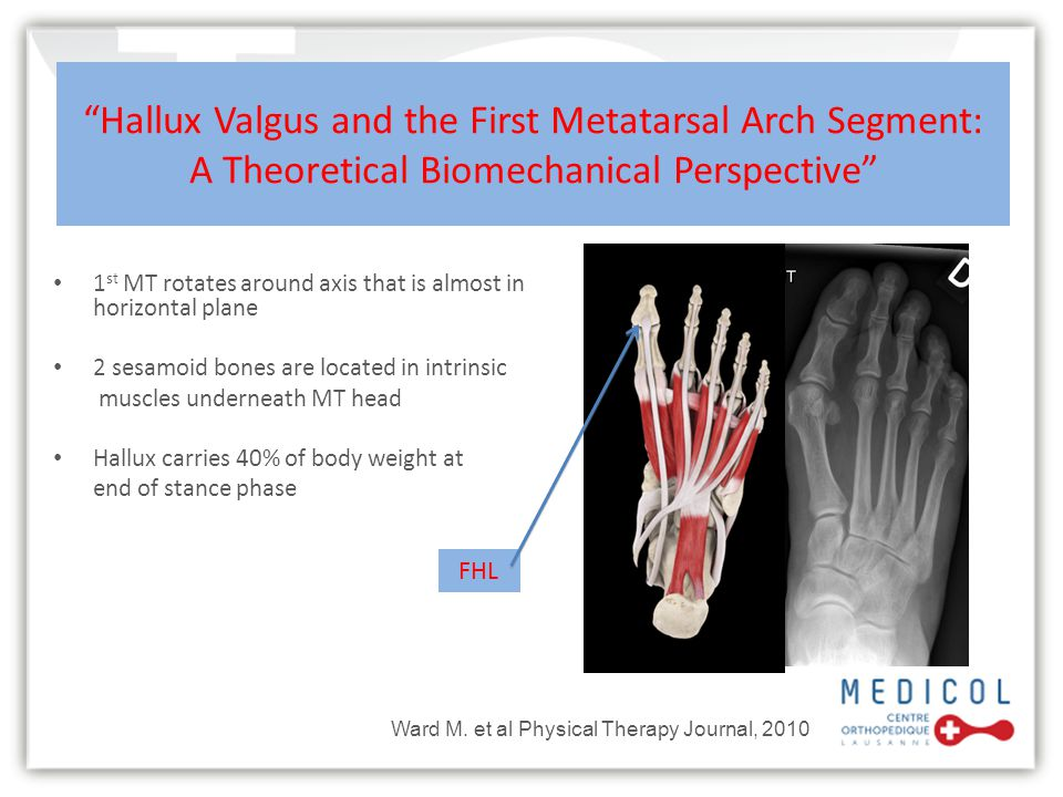 Hallux Valgus and the First Metatarsal Arch Segment: A Theoretical Biomechanical Perspective