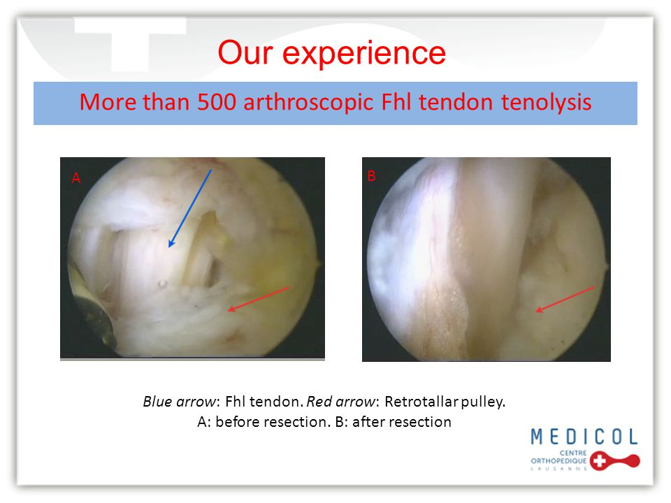 Our experience More than 500 arthroscopic Fhl tendon tenolysis A B