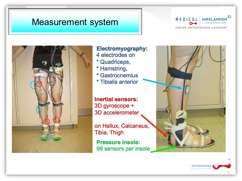 Measurement system 5