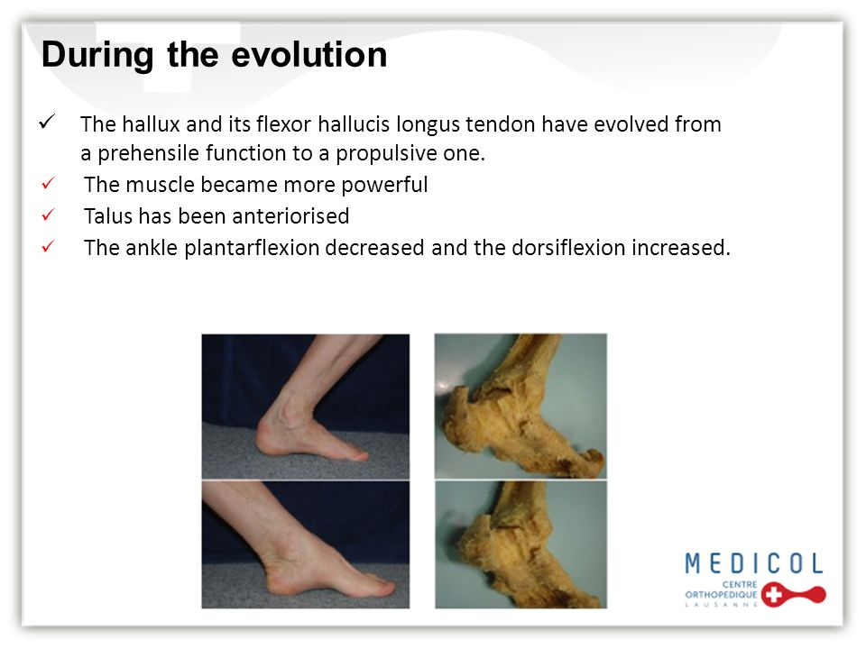 During the evolution The hallux and its flexor hallucis longus tendon have evolved from. a prehensile function to a propulsive one.