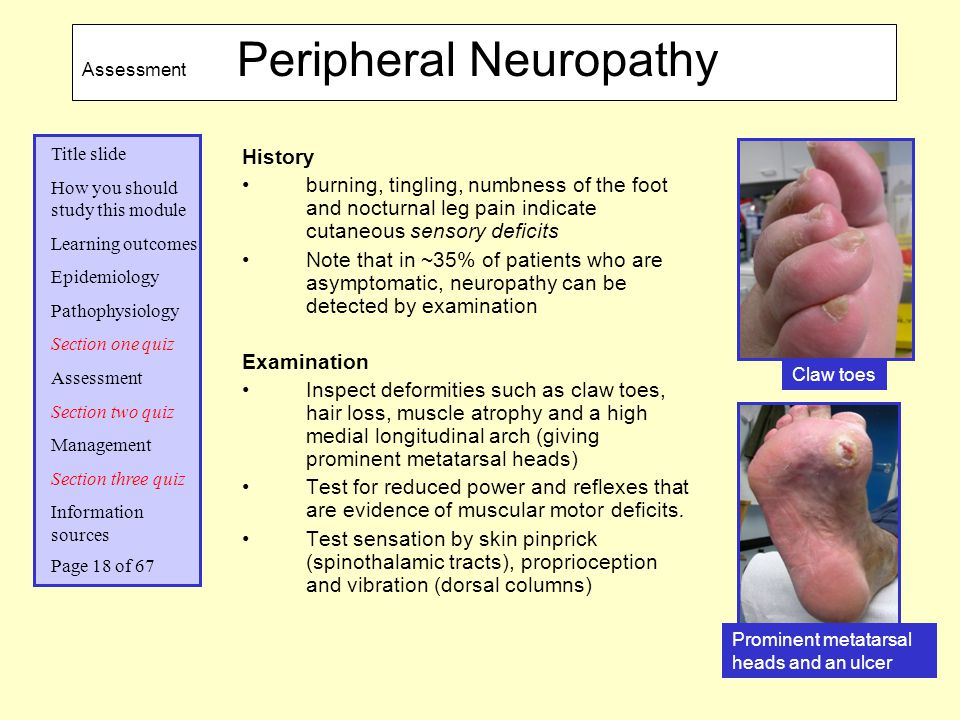 Assessment Peripheral Neuropathy