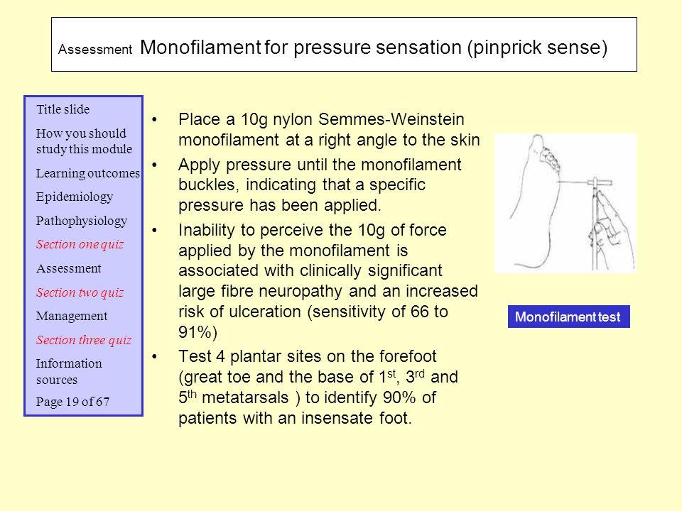 Assessment Monofilament for pressure sensation (pinprick sense)