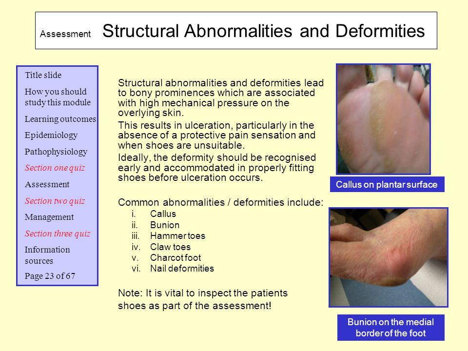 Common abnormalities / deformities include: