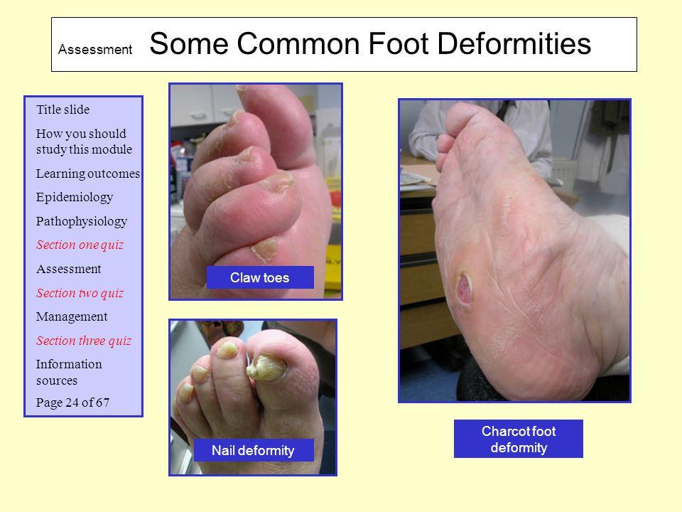 Charcot foot deformity