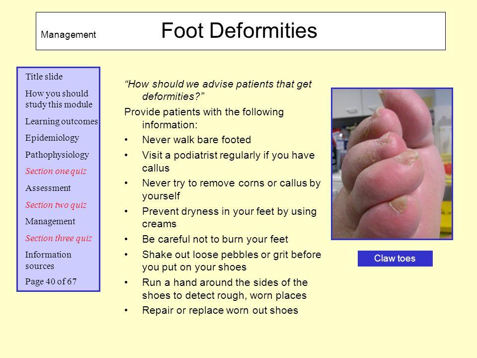 How should we advise patients that get deformities
