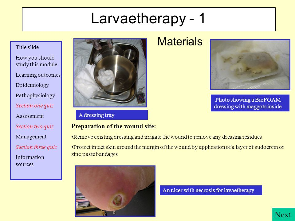 Larvaetherapy - 1 Materials Next Preparation of the wound site: