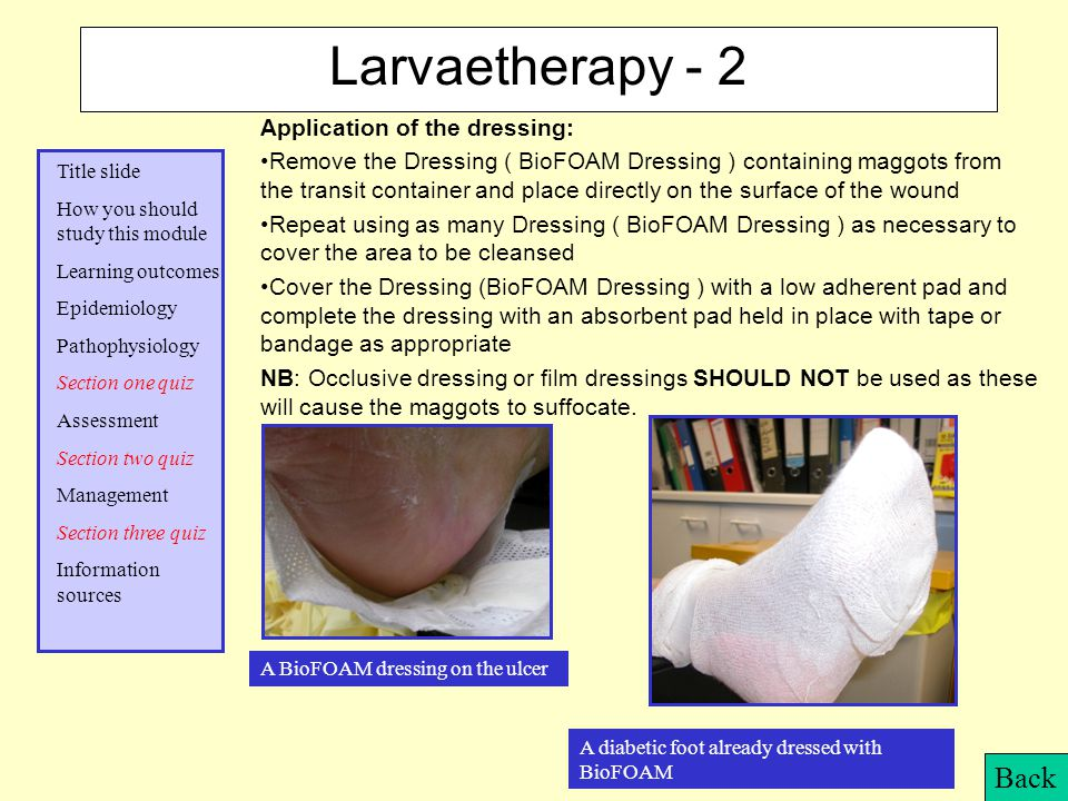 Larvaetherapy - 2 Back Application of the dressing:
