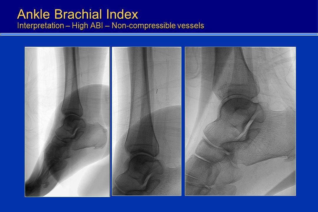 Ankle Brachial Index Interpretation – High ABI – Non-compressible vessels