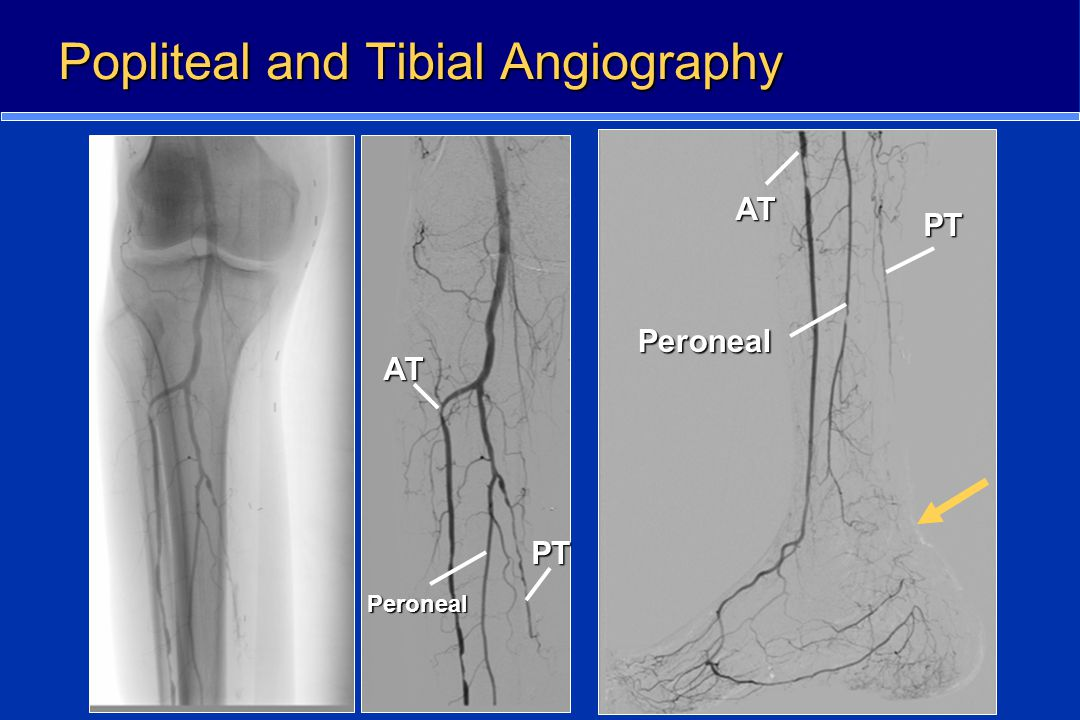 Popliteal and Tibial Angiography