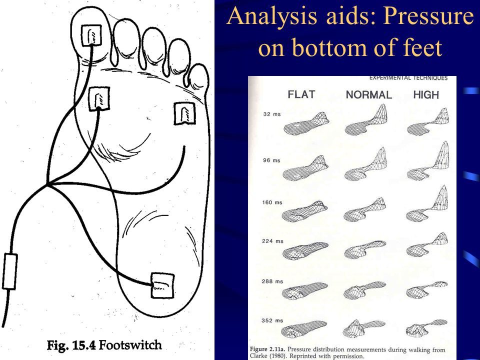 Analysis aids: Pressure on bottom of feet
