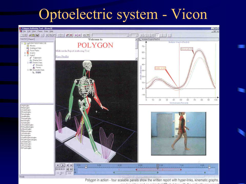Optoelectric system - Vicon