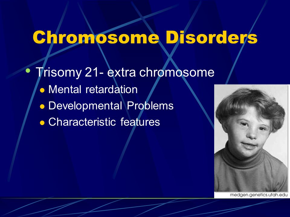 Chromosome Disorders Trisomy 21- extra chromosome Mental retardation