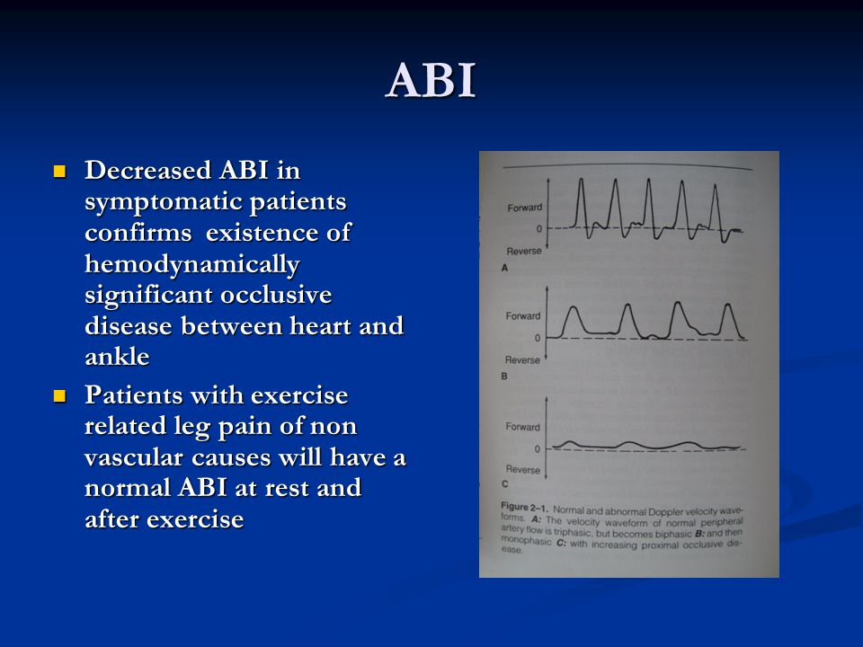 ABI Decreased ABI in symptomatic patients confirms existence of hemodynamically significant occlusive disease between heart and ankle.