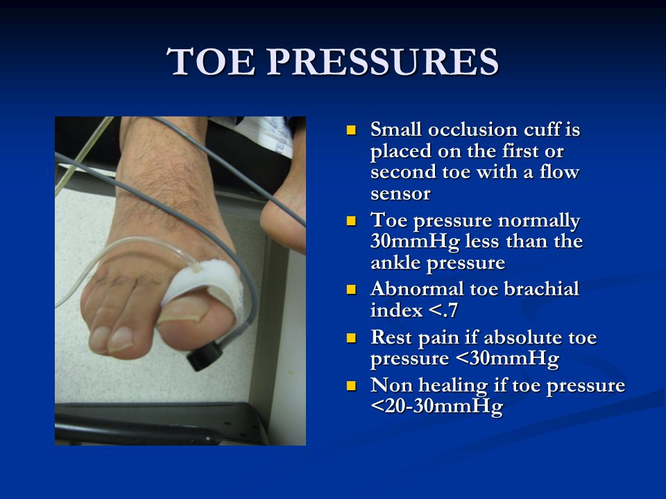 TOE PRESSURES Small occlusion cuff is placed on the first or second toe with a flow sensor.