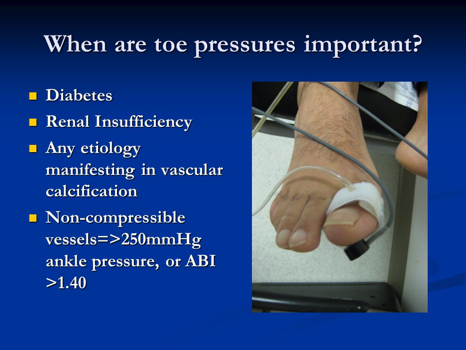 When are toe pressures important